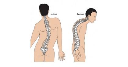 Scoliose et Cyphose