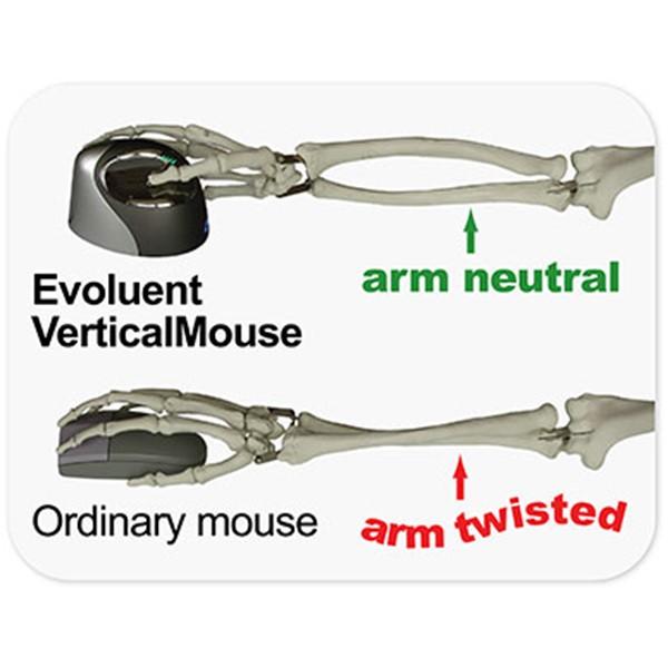 Utilisation souris ergonomique